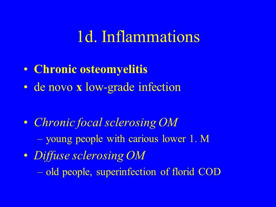 1d. Inflammations Chronic osteomyelitis de novo x low-grade infection