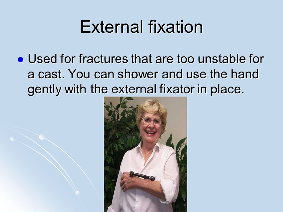 External fixation Used for fractures that are too unstable for a cast.