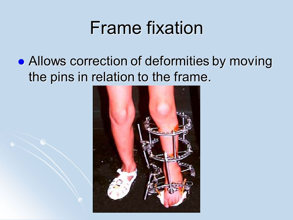 Frame fixation Allows correction of deformities by moving the pins in relation to the frame.