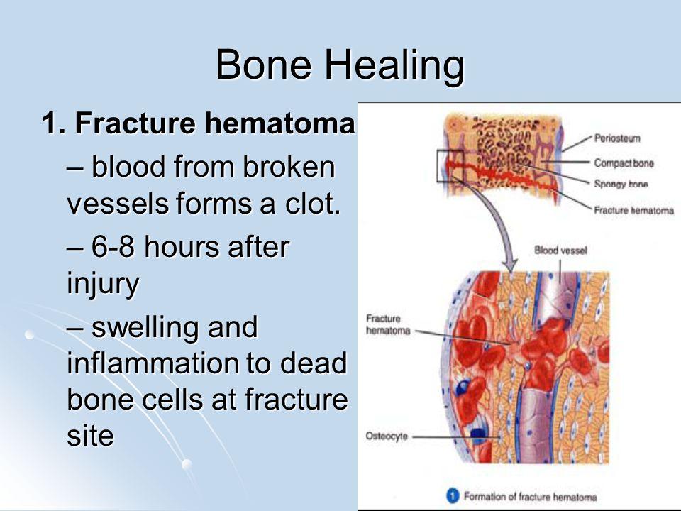 Bone Healing 1. Fracture hematoma