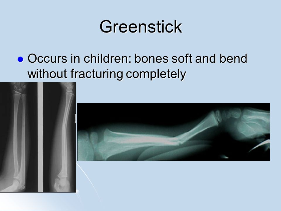 Greenstick Occurs in children: bones soft and bend without fracturing completely