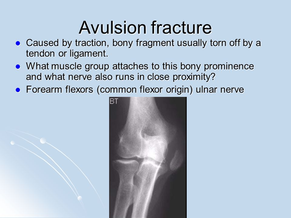 Avulsion fracture Caused by traction, bony fragment usually torn off by a tendon or ligament.