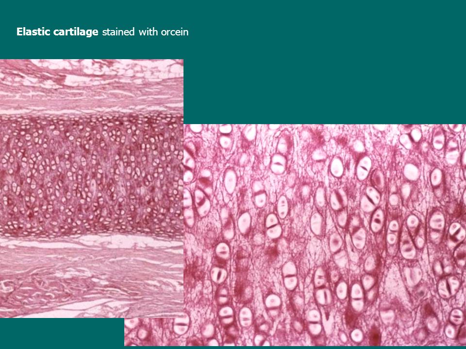 Elastic cartilage stained with orcein