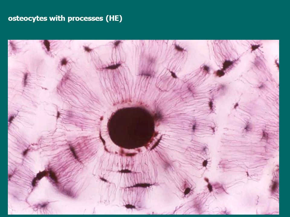 osteocytes with processes (HE)