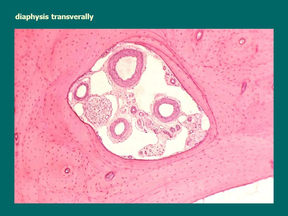 diaphysis transverally