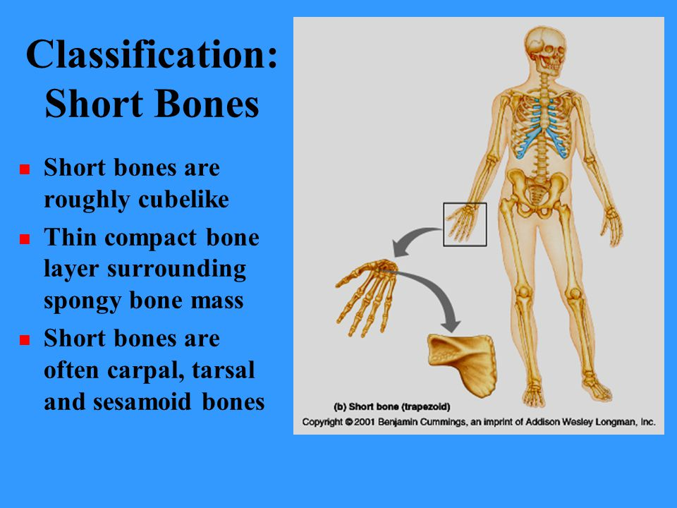 Classification: Short Bones
