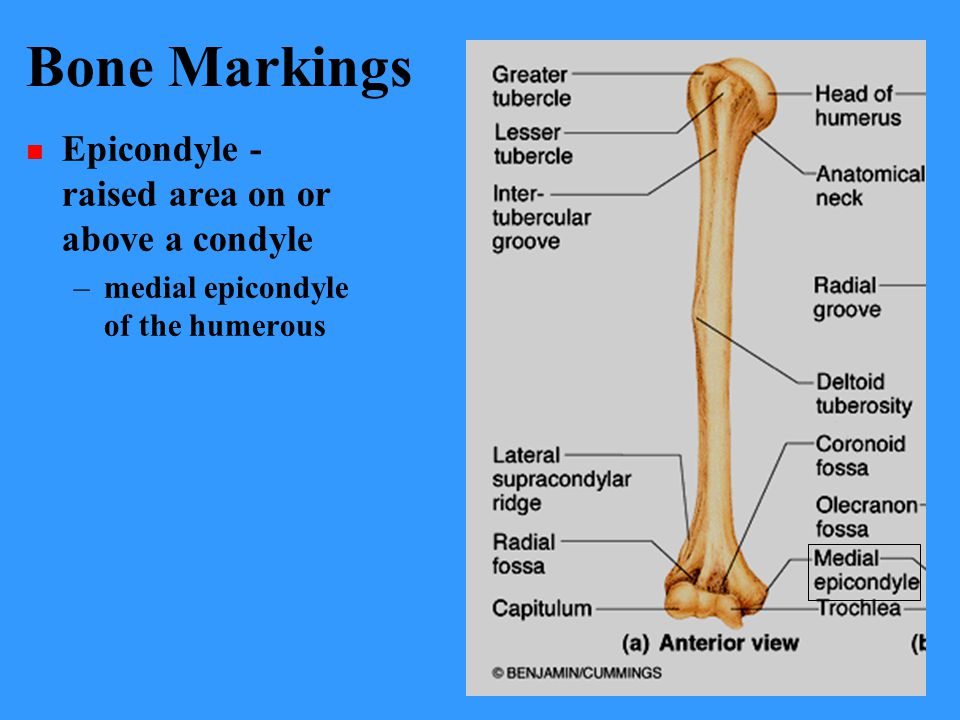 Bone Markings Epicondyle - raised area on or above a condyle