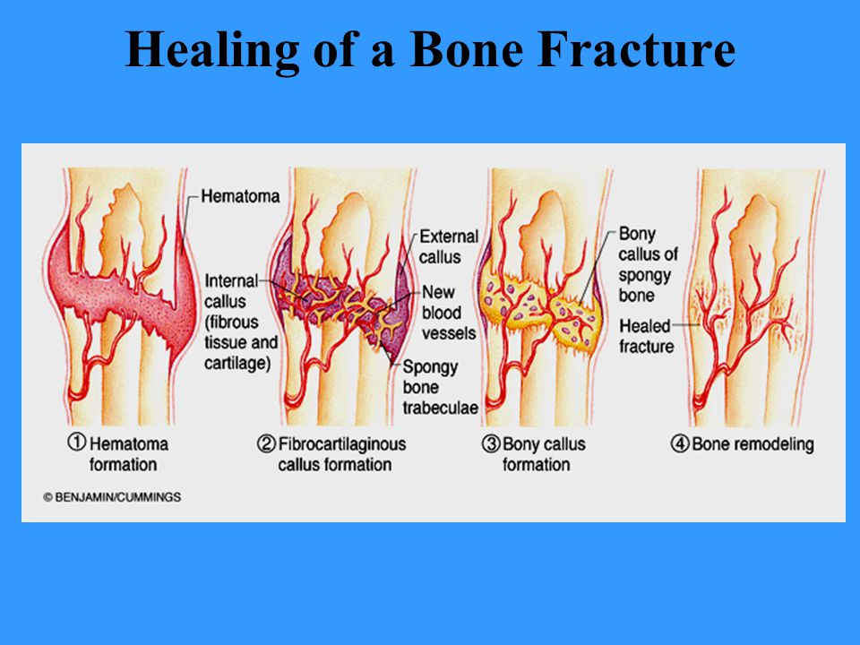 Healing of a Bone Fracture