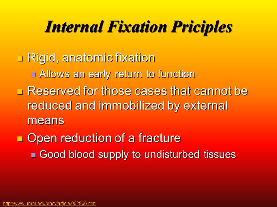 Internal Fixation Priciples
