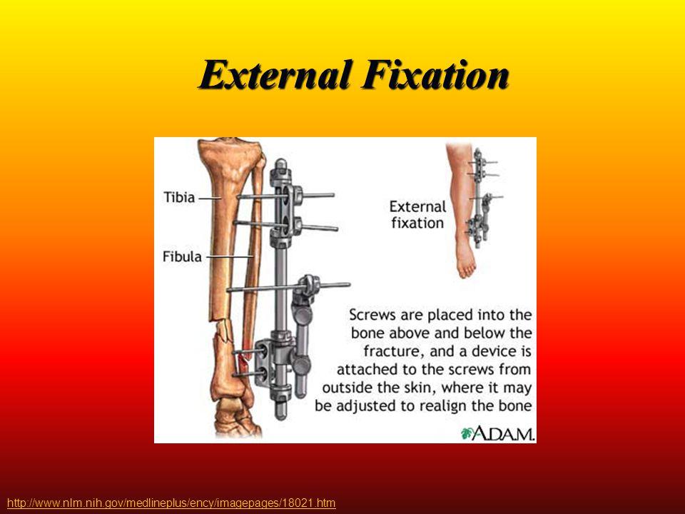 External Fixation http://www.nlm.nih.gov/medlineplus/ency/imagepages/18021.htm