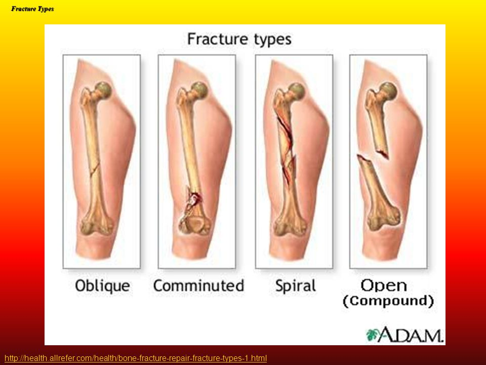 Fracture Types http://health.allrefer.com/health/bone-fracture-repair-fracture-types-1.html
