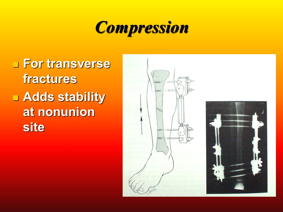 Compression For transverse fractures Adds stability at nonunion site