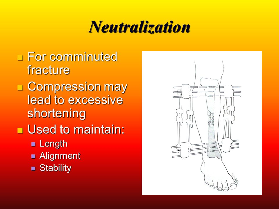 Neutralization For comminuted fracture