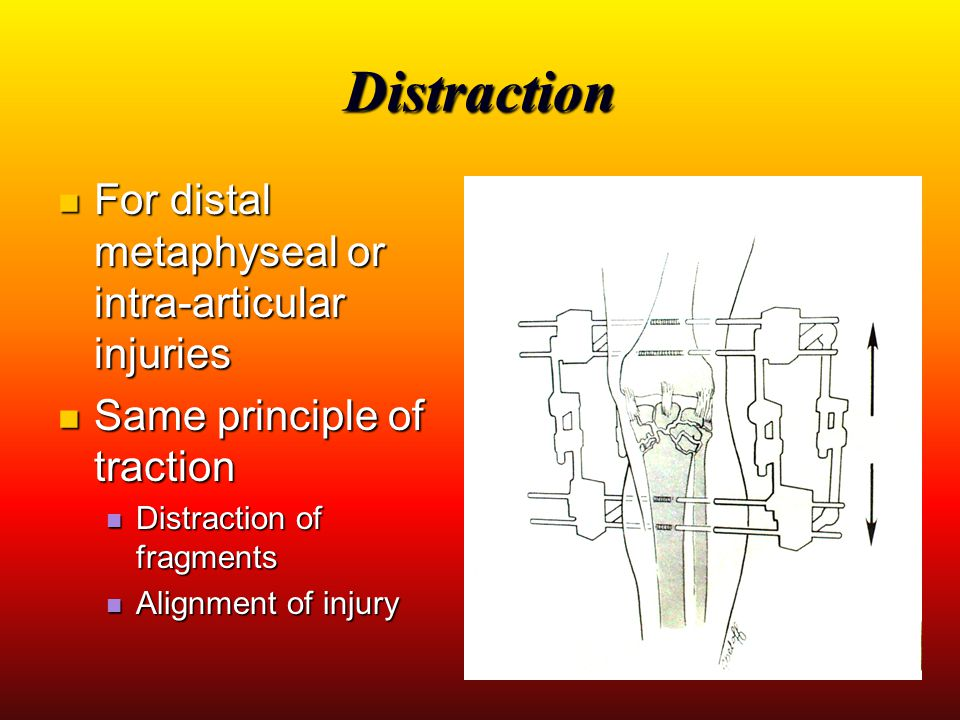 Distraction For distal metaphyseal or intra-articular injuries