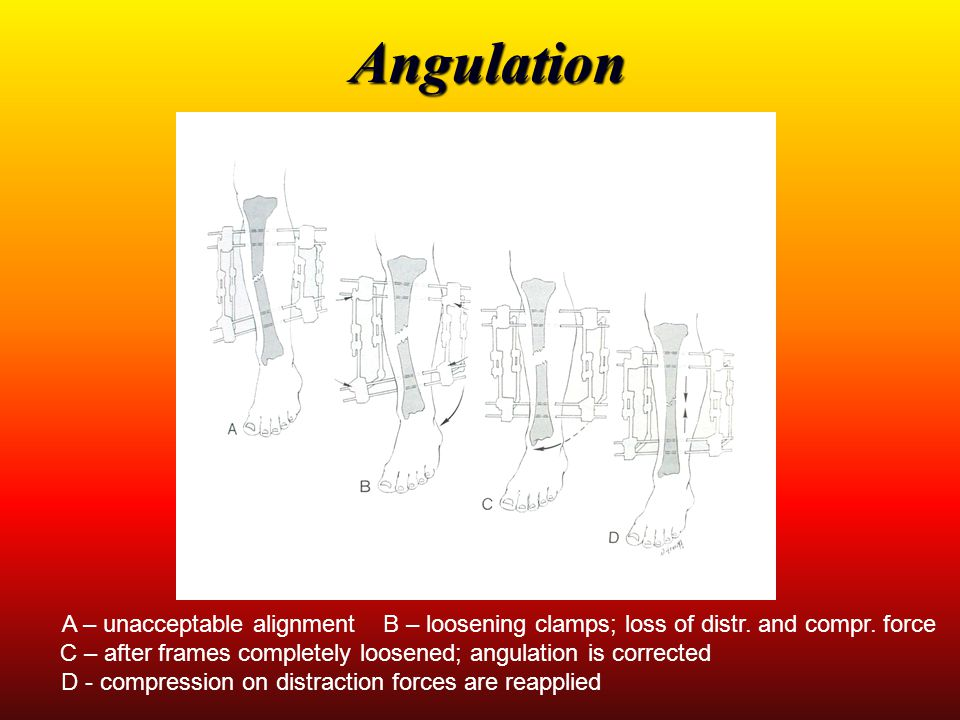 Angulation A – unacceptable alignment B – loosening clamps; loss of distr. and compr. force.