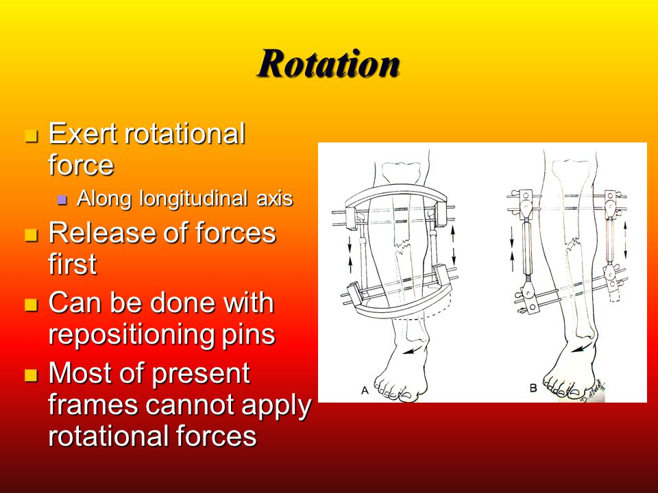 Rotation Exert rotational force Release of forces first