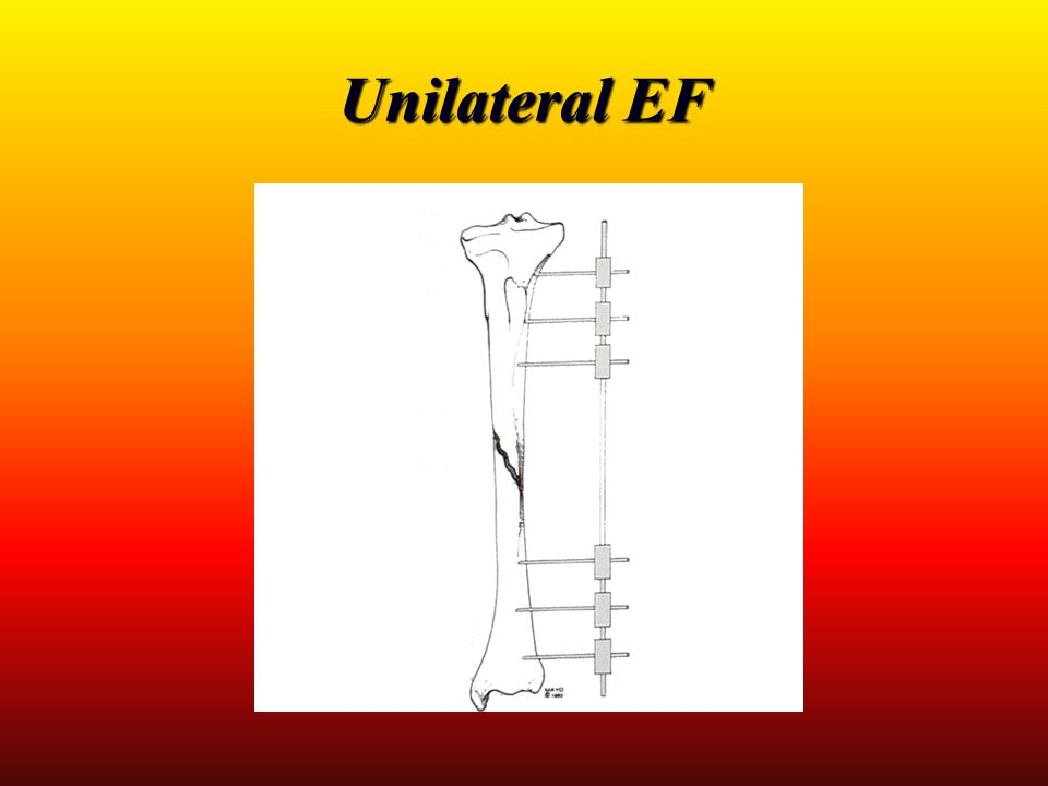 Unilateral EF
