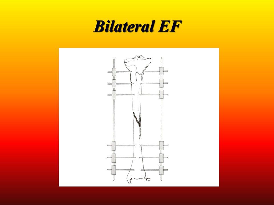 Bilateral EF
