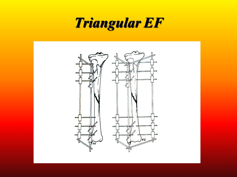 Triangular EF