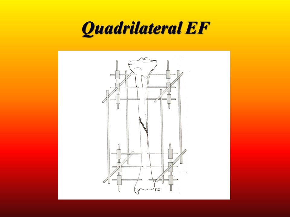 Quadrilateral EF