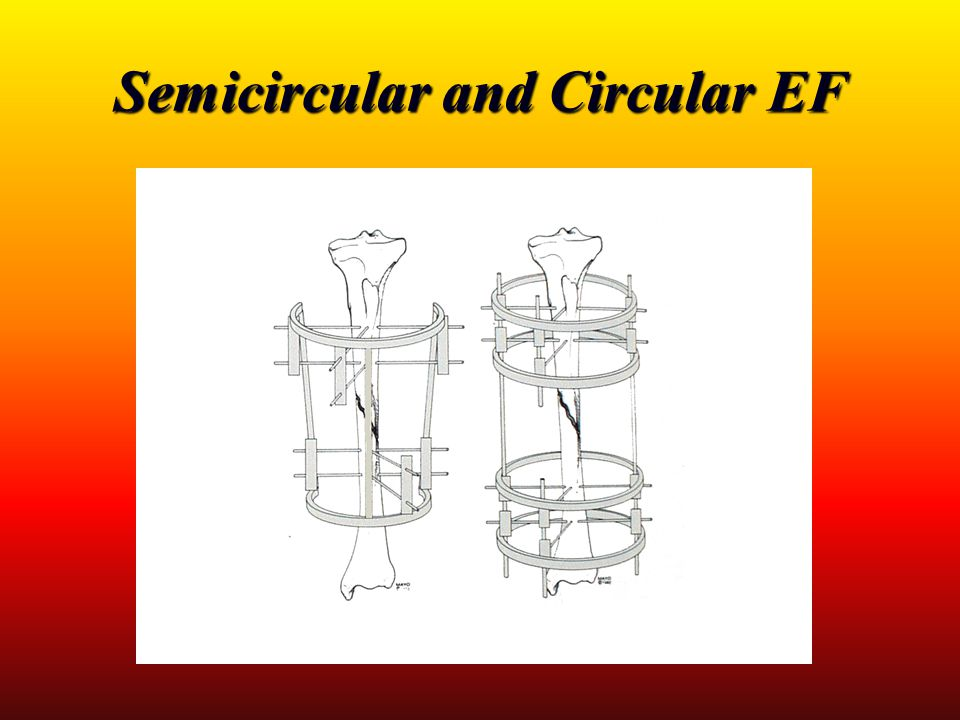 Semicircular and Circular EF