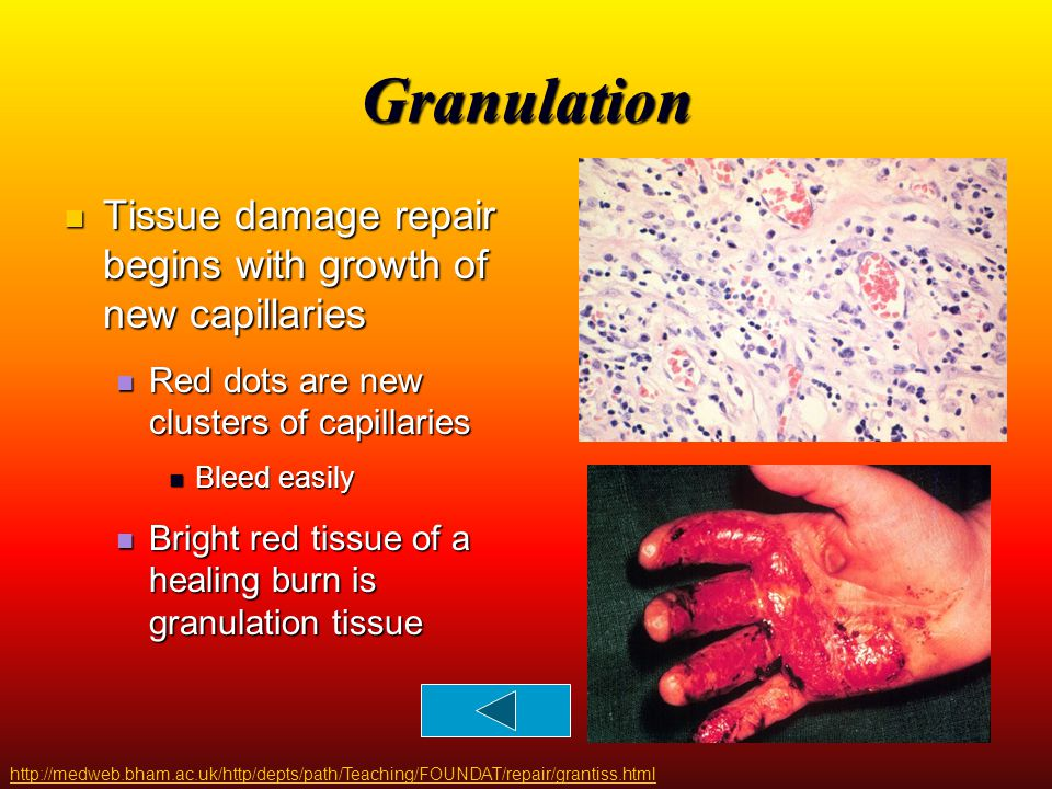 Granulation Tissue damage repair begins with growth of new capillaries
