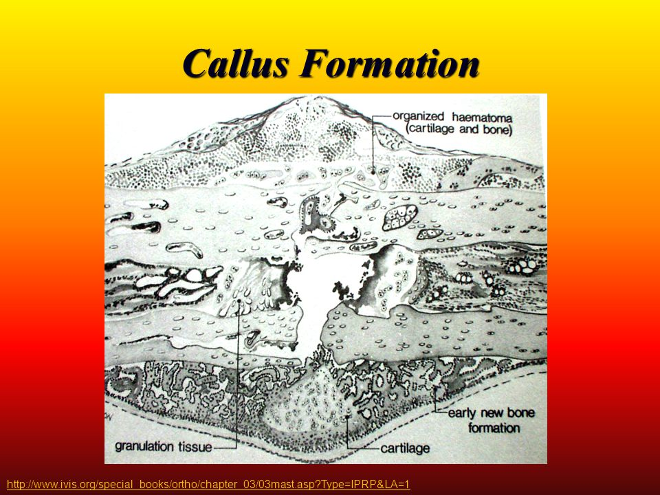 Callus Formation http://www.ivis.org/special_books/ortho/chapter_03/03mast.asp Type=IPRP&LA=1