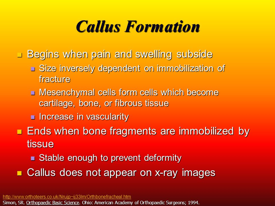 Callus Formation Begins when pain and swelling subside