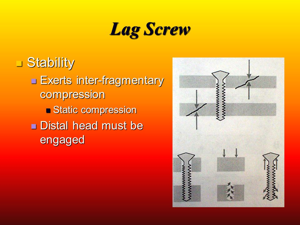 Lag Screw Stability Exerts inter-fragmentary compression