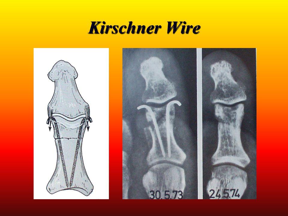 Kirschner Wire