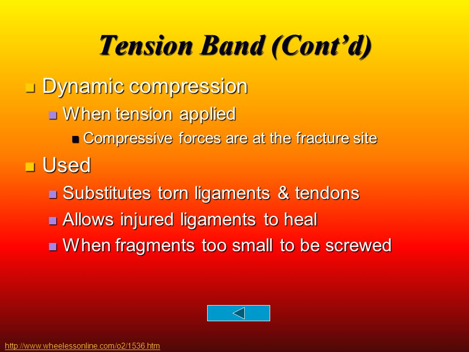Tension Band (Cont'd) Dynamic compression Used When tension applied
