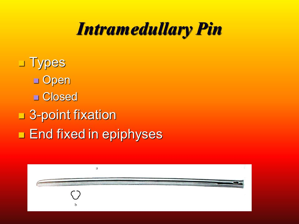Intramedullary Pin Types 3-point fixation End fixed in epiphyses Open