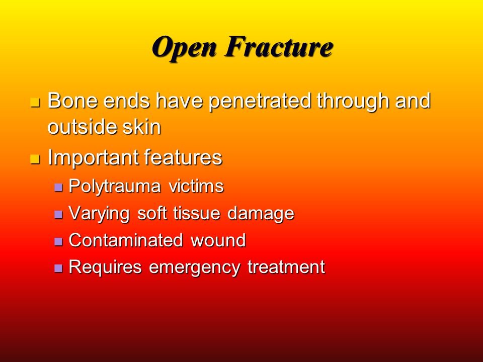 Open Fracture Bone ends have penetrated through and outside skin