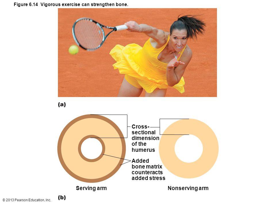 Figure 6.14 Vigorous exercise can strengthen bone.