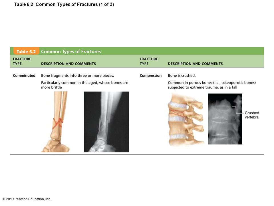 Table 6.2 Common Types of Fractures (1 of 3)