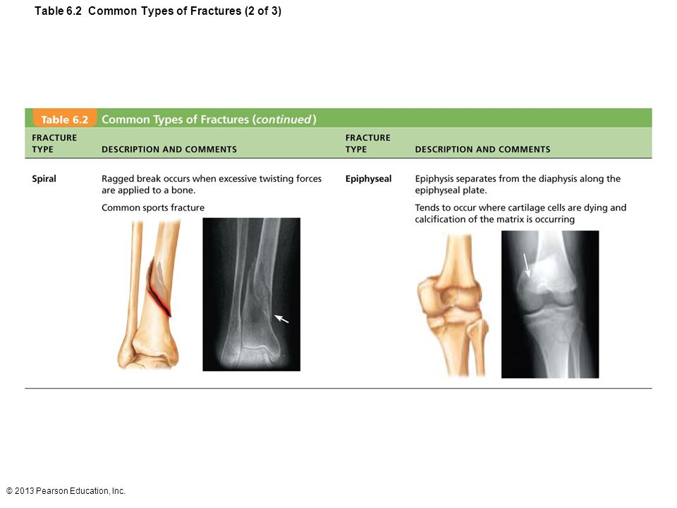 Table 6.2 Common Types of Fractures (2 of 3)