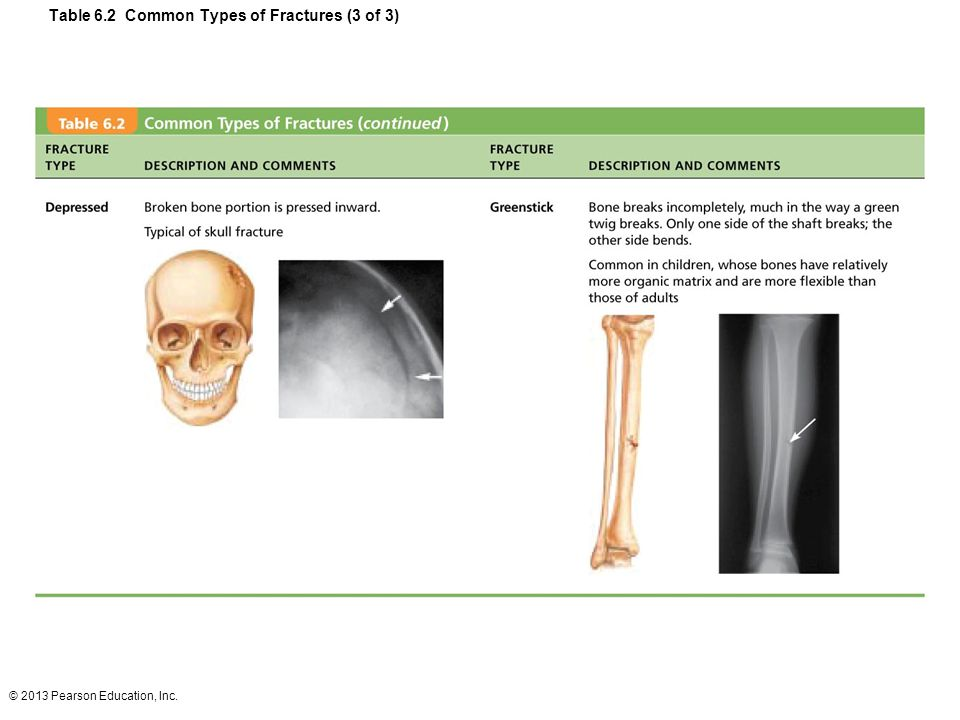 Table 6.2 Common Types of Fractures (3 of 3)