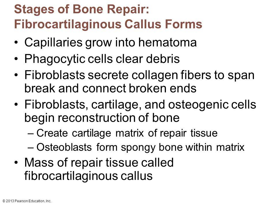 Stages of Bone Repair: Fibrocartilaginous Callus Forms