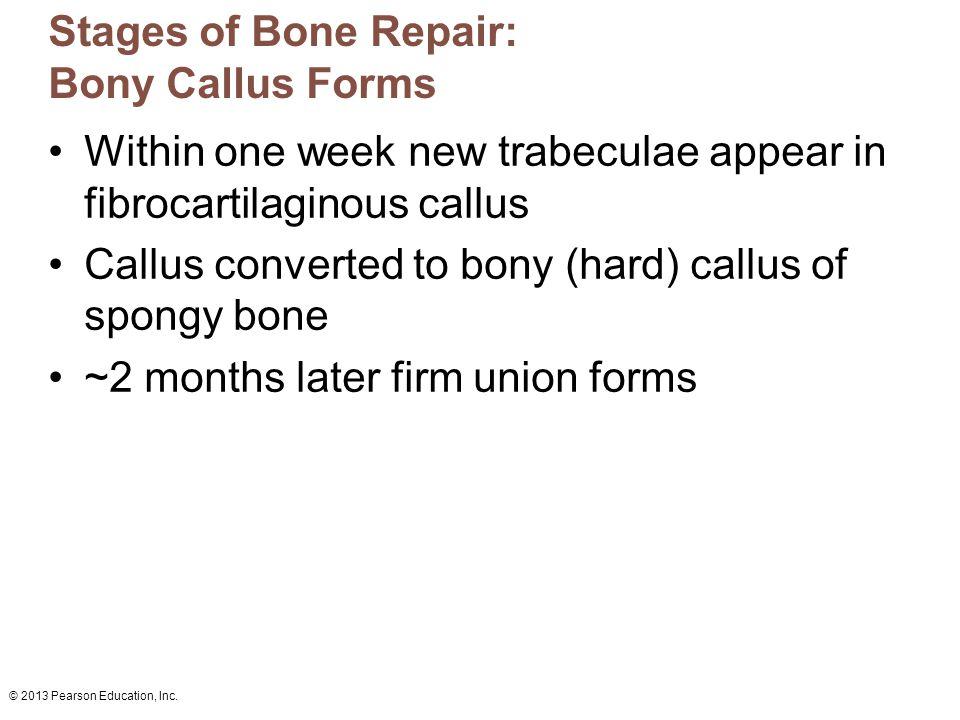 Stages of Bone Repair: Bony Callus Forms