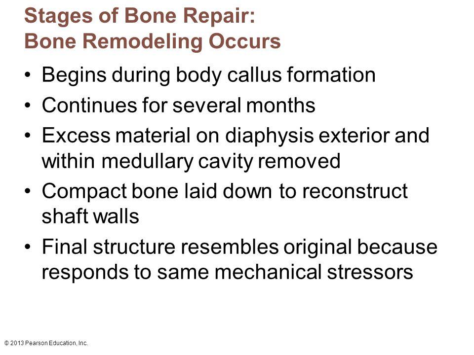 Stages of Bone Repair: Bone Remodeling Occurs