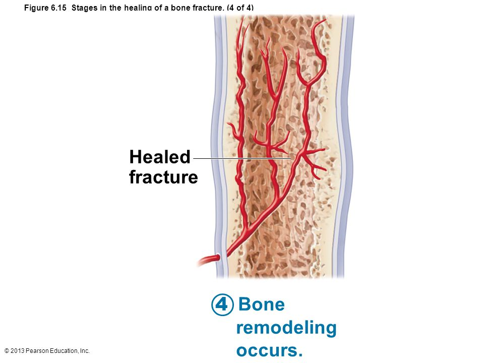 Figure 6.15 Stages in the healing of a bone fracture. (4 of 4)