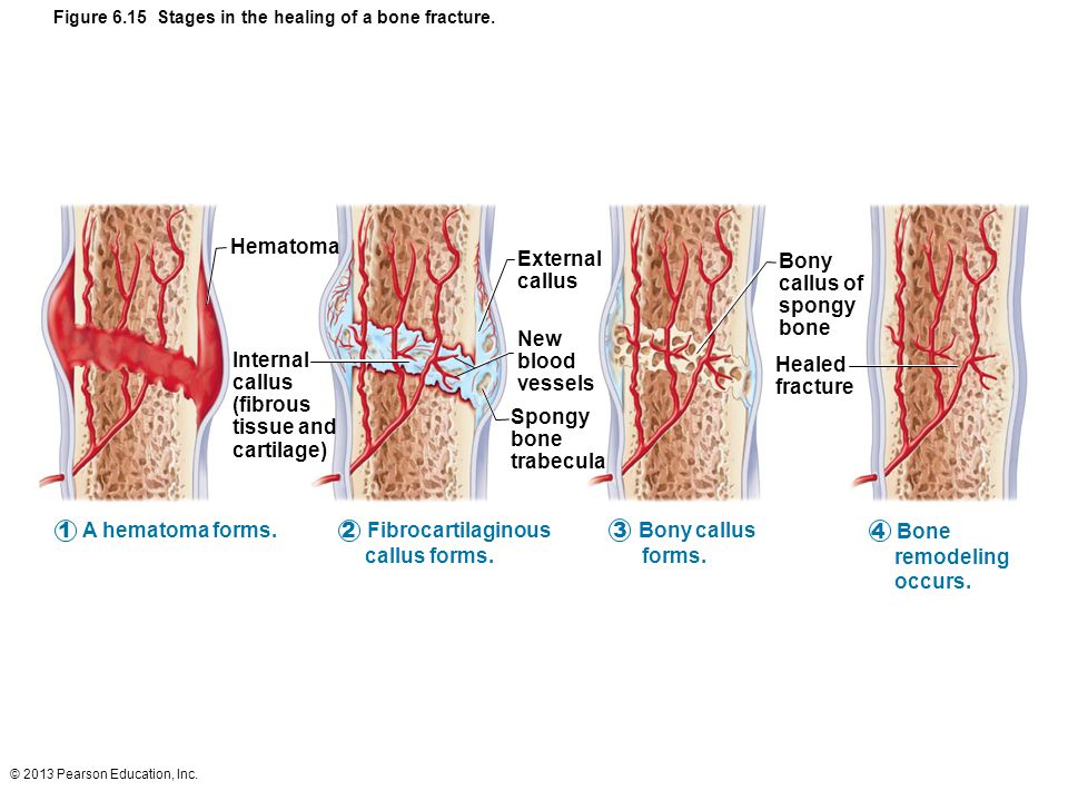 Figure 6.15 Stages in the healing of a bone fracture.