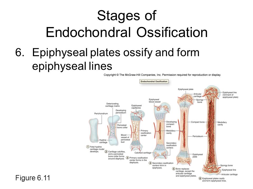 Stages of Endochondral Ossification