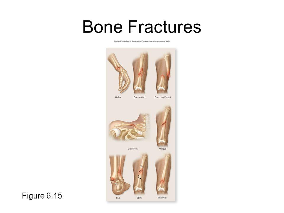 Bone Fractures Figure 6.15