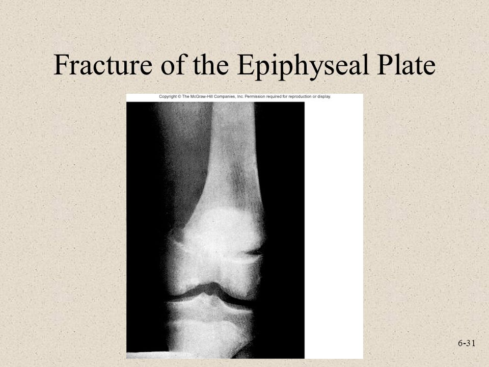 Fracture of the Epiphyseal Plate