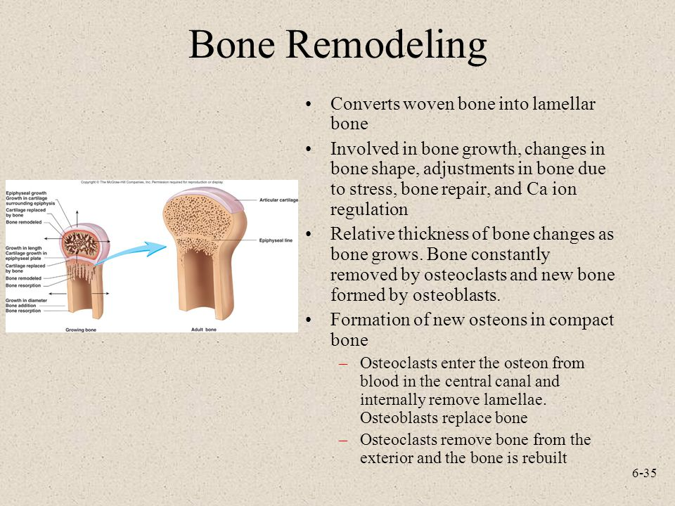 Bone Remodeling Converts woven bone into lamellar bone