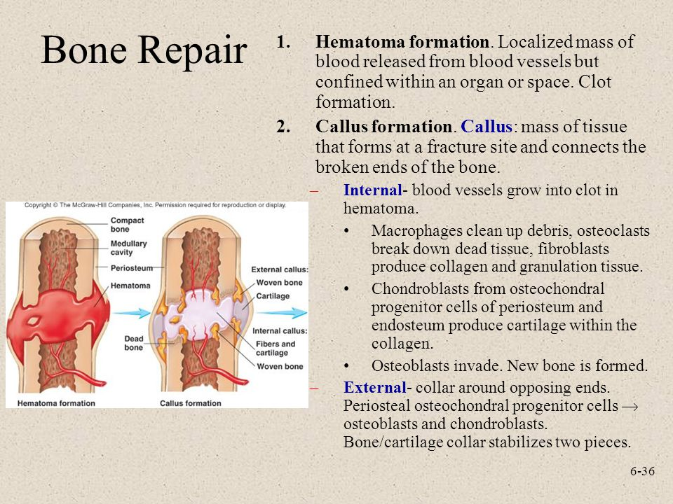 Bone Repair Hematoma formation. Localized mass of blood released from blood vessels but confined within an organ or space. Clot formation.