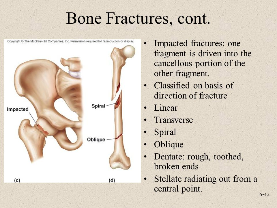 Bone Fractures, cont. Impacted fractures: one fragment is driven into the cancellous portion of the other fragment.
