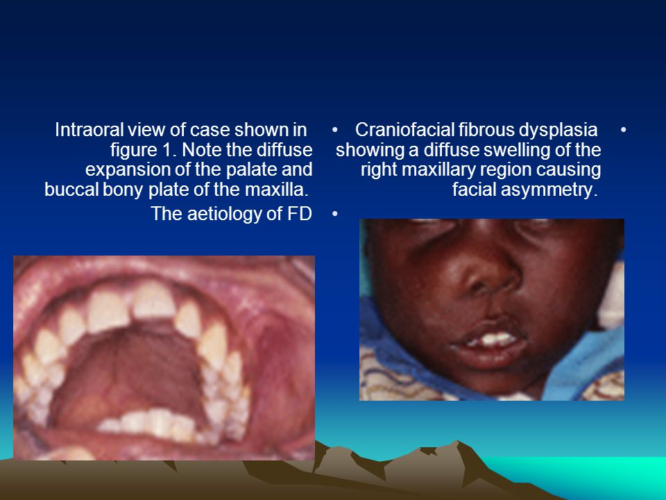 Intraoral view of case shown in figure 1