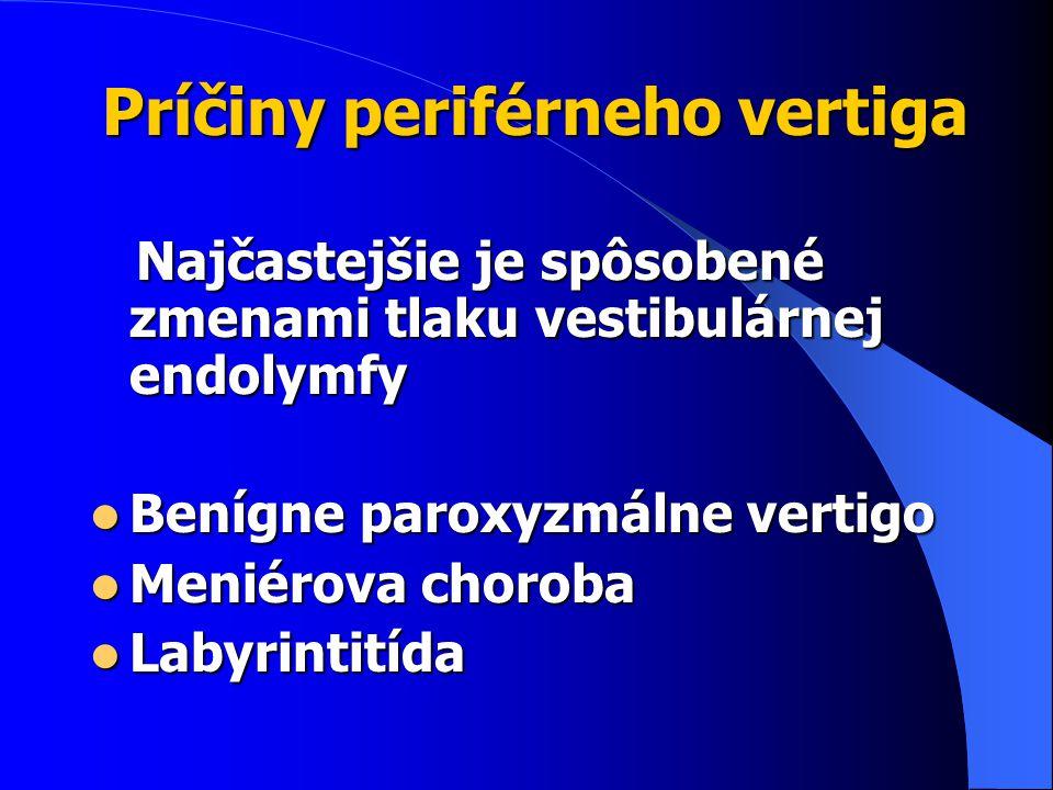 Príčiny periférneho vertiga
